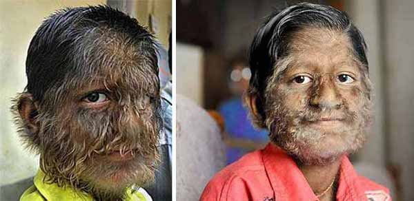 9-hypertrichosis